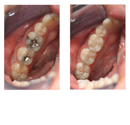 Amalgam Removal Before and After