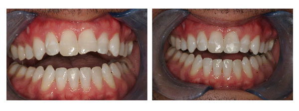 Chipped Tooth Repair Before and After